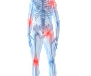 artroza vs artrita tratamentul articulațiilor cu pulbere